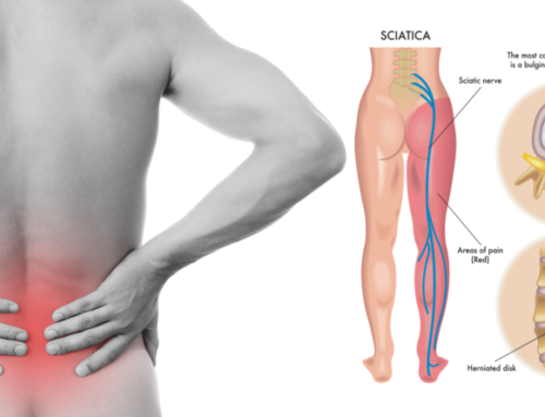 Sciatalgie: la differenza fra il dolore a destra e il dolore a sinistra