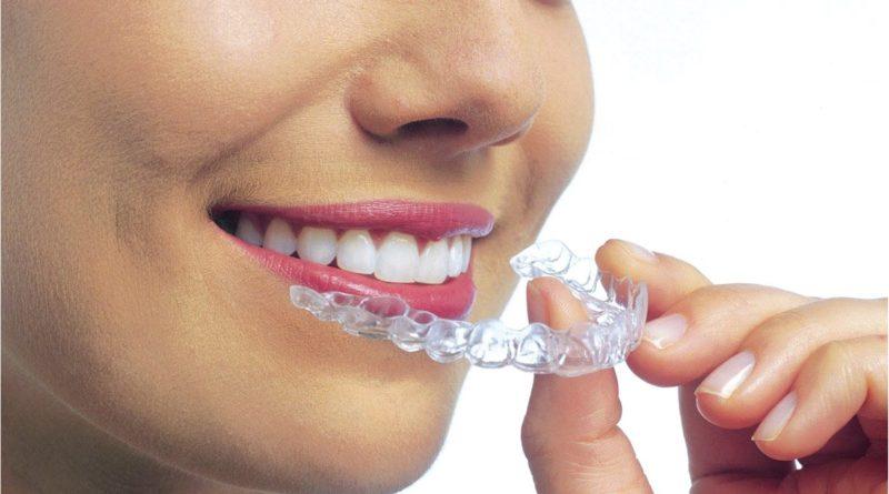 Denti e postura: perché la malocclusione causa dolore al collo