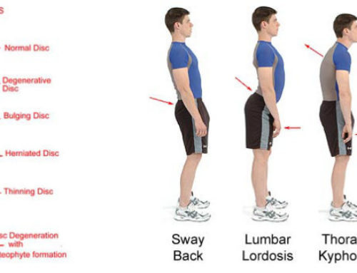 Qual è la postura corretta? (prima parte)