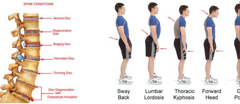 Qual è la postura corretta?